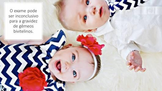 gravidez gêmeos