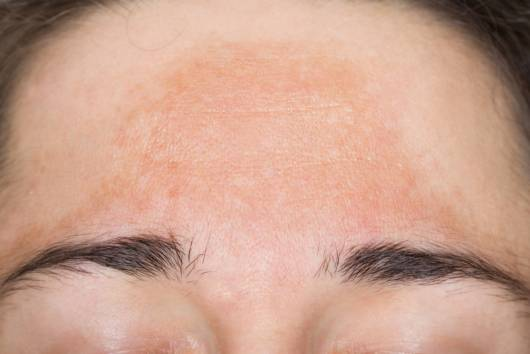 causas do melasma na gravidez